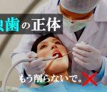 今すぐ虫歯の原因を知ってください。痛い虫歯でも高い治療費なんてかけずに進行を止めて治せます